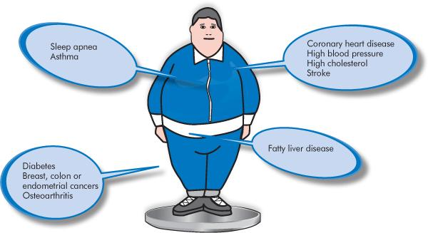 Is obesity a disease essay