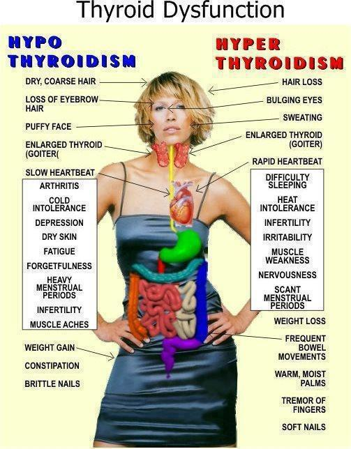 Thyroid-symptons